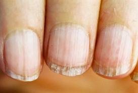 this image shows an older persons dirty fingernails
