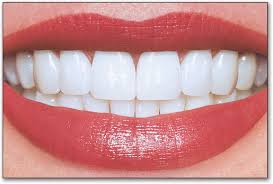 this image shows a good set of teeth