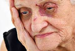 this image shows an elderly woman with bruises to her face