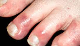 this photo shows red chilblains on the toes