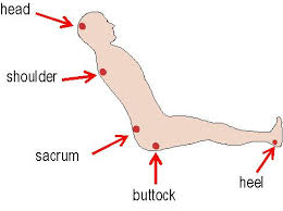 this image shows the parts of the body most prone to pressure sores