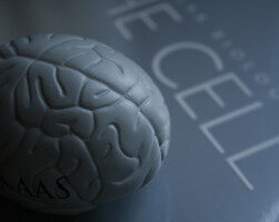 This image shows a model of the brain. The model is grey in colour